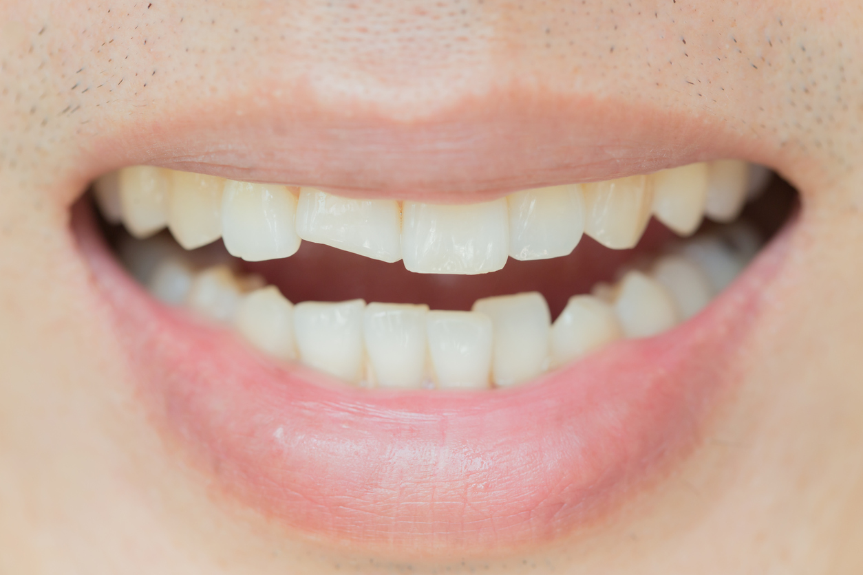 what can you do for a cracked tooth