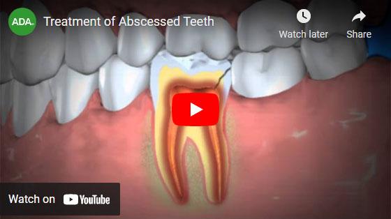 treatment of abscessed teeth video