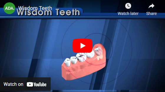 wisdom teeth video