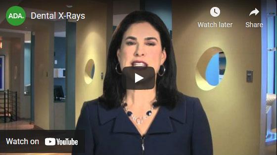 Dental x-rays video