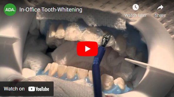 Tooth Whitening video
