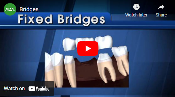 Dental Bridges video