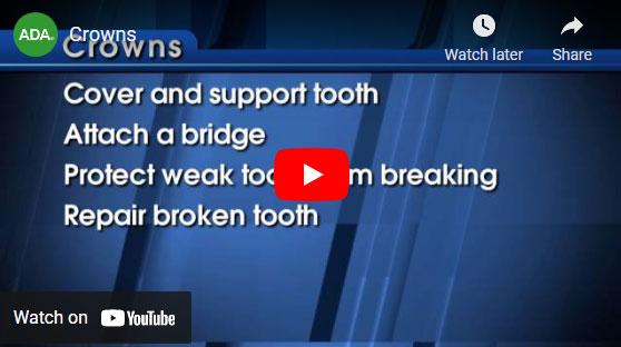 Dental Crowns video